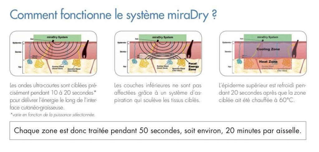 Fonctionnement du traitement miraDry